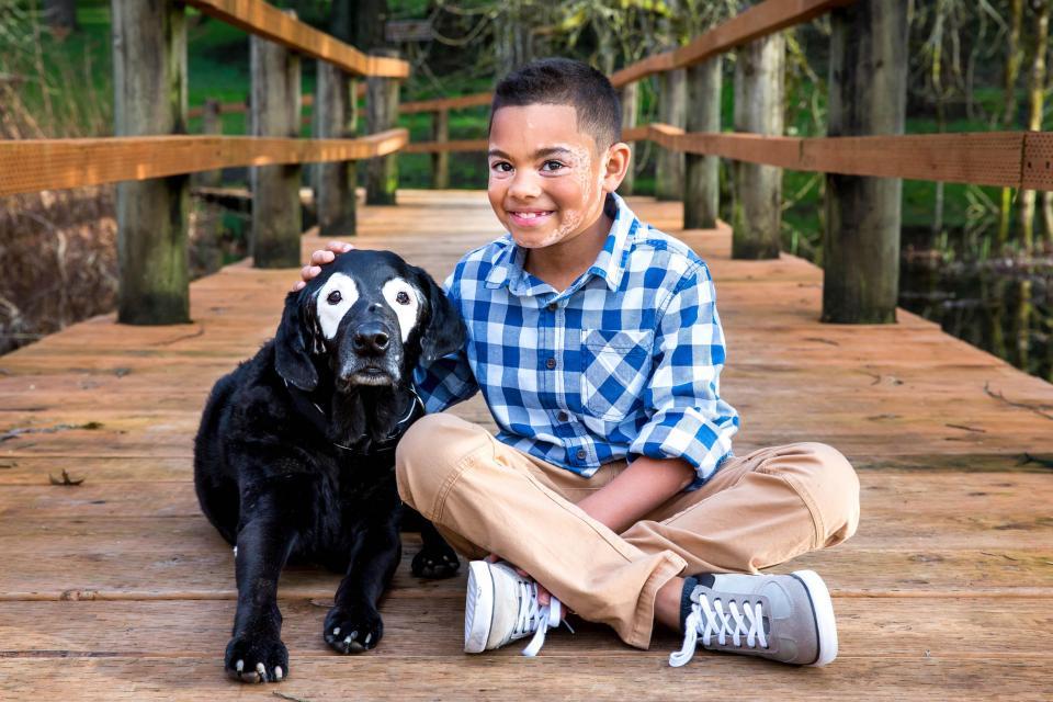 niño con vitiligo supera una depresión