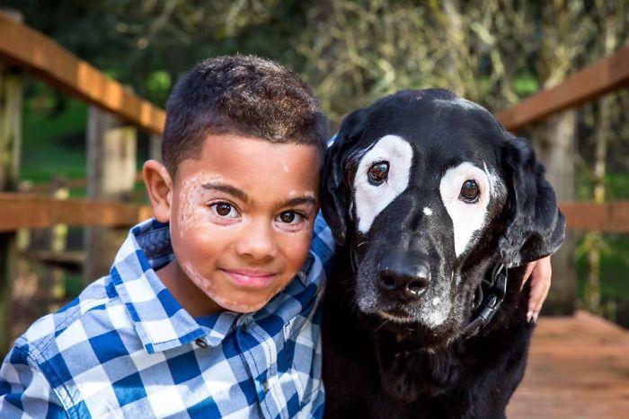 niño con vitiligo supera la depresión gracias a un perro